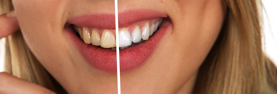 Comment avoir de belles dents blanches au naturel ?